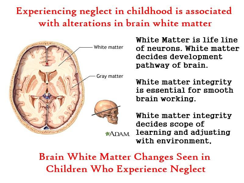 White Matter neglect