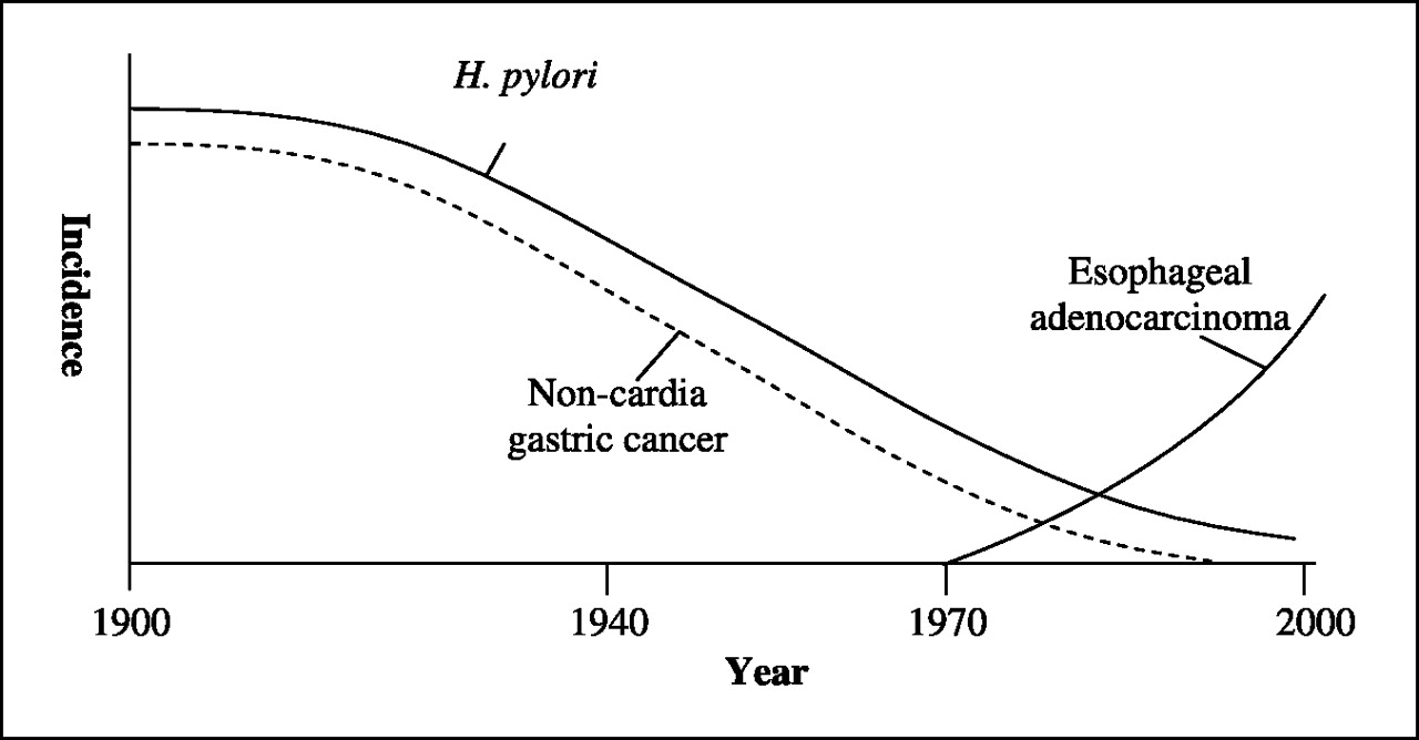 Relative incidences of gastric H. pylori colonization, NCGC, and EAC during the 20th century in the United States and other now-developed countries. After a relatively short latency, the incidence of NCGC began to decrease in parallel with the declining incidence of H. pylori. However, the increase in EAC did not begin until many decades after both H. pylori and noncardia gastric cancer had begun to decrease.