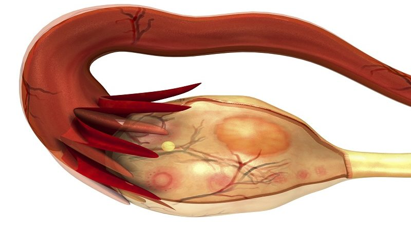 The female internal reproductive organs are the vagina, uterus, uterine tubes (Fallopian tubes, oviducts) and ovaries.