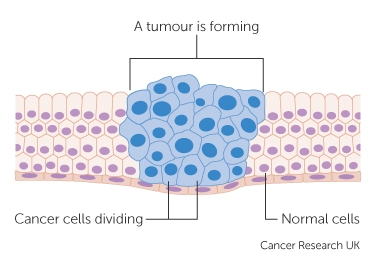 diagram-showing-how-cancer-cells-keep-on-reproducing-to-form-a-tumour_0
